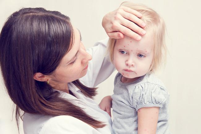 儿童白血病的症状及预防