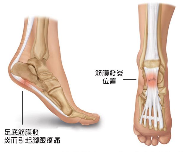 跟痛症/足底筋膜炎