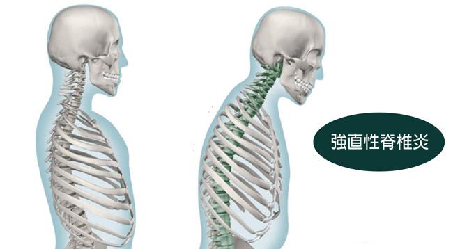 腰痛有好多種?